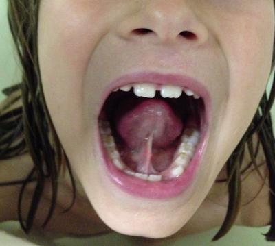 Tie Gallery Advocates For Tongue Tie Education